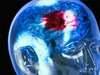 Распознать инсульт поможет тест-полоска
